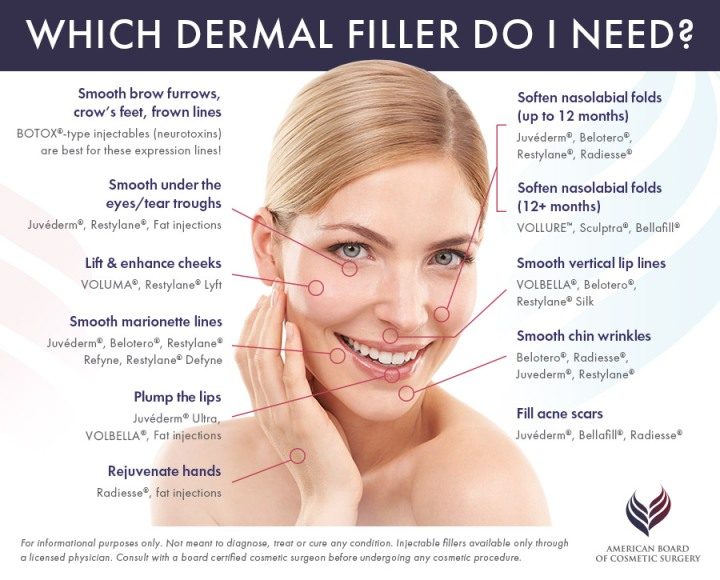 dermal-filler-guide