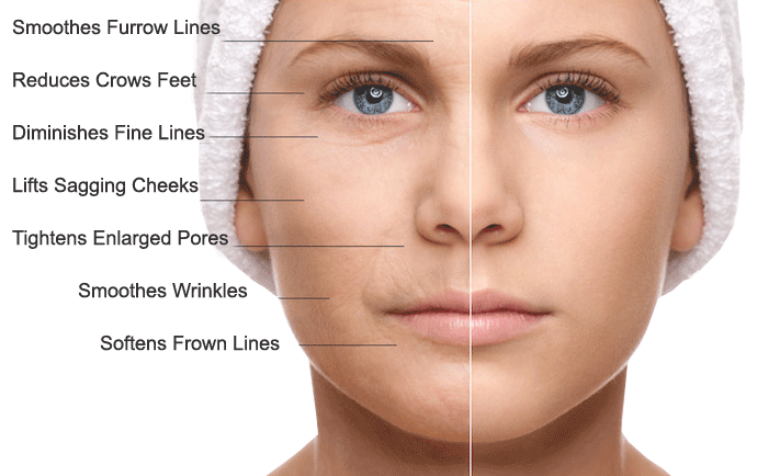 what-does-microneedling-do